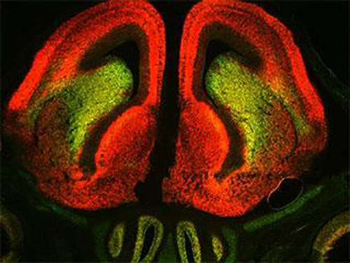 When they marked 3' UTR sequences of Sox 11 mRNA in embryonic mouse brain (above) in red, and coding sequences in green, researchers expected, in line with common thinking, that all Sox11-expressing cells would appear yellow, indicating both components were present in even ratios. Surprisingly, some cells were clearly red and others green, suggesting disparities between the two. [Laboratory of Neural Specification and Development/The Rockefeller University]