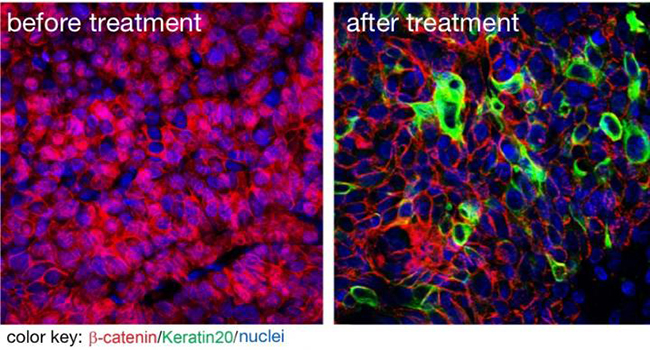 A new inhibitor suppresses tumor growth and cancer stem cells. The image on the left shows beta catenin (red) in cell nuclei indicating that these are cancer stem cells. The image on the right shows that the new substance successfully removed beta catenin from the nuclei. [Picture by Liang Fang for the MDC]