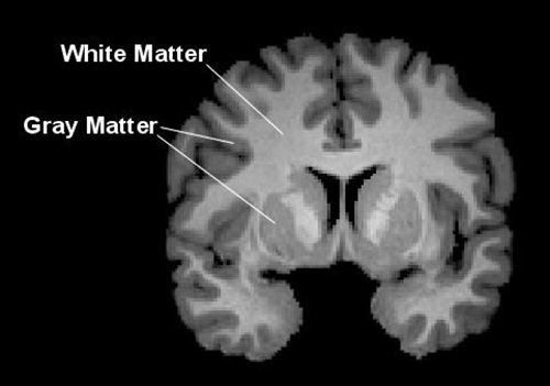 Gray matter is located on the surface of the cerebral cortex and also includes deep brain structures such as the thalamus and basal ganglia. White matter is located beneath the gray matter of the cerebral cortex and comprises long neural pathways that are responsible for transferring information between gray matter regions where the processing of information occurs. [Shawn Christ, Ph.D.]