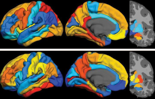 PET imaging shows that tau (top) and ß-amyloid (bottom) in distinct topographies are strongly correlated in Alzheimer's disease. [M.R. Brier et al.