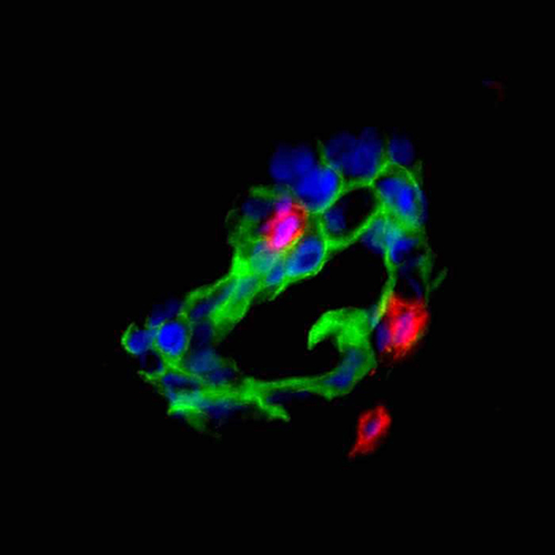 T cells (red) attack ovarian cancer cells (green). [University of Michigan Health System]