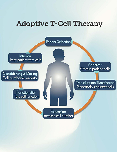 The steps in adoptive T-cell therapy. [Medical University of South Carolina]