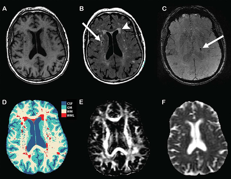 Structural and microstructural MRI markers of subclinical brain damage. The left side of each image corresponds to right side of the brain. (A) T1-weighted image. (B) Fluid-attenuated inversion recovery image shows white matter lesions (arrowhead) and lacunar infarct (arrow). (C) Three-dimensional T2* gradient-echo MRI shows cerebral microbleeds (arrow). (D) Tissue segmentation, with each tissue type represented by a different color. CSF, cerebrospinal fluid; GM, gray matter; WM, white matter; WML, white matter lesion. (E) Diffusion-tensor imaging map of fractional anisotropy. (F) Diffusion-tensor imaging map of mean diffusivity. [Radiological Society of North America]