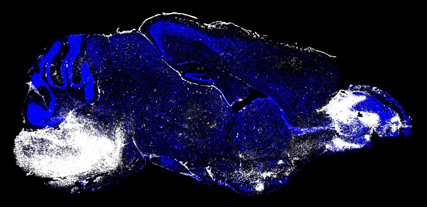 This image shows the brain of a mouse with cerebral malaria. White regions (left, brainstem and right, olfactory bulb) indicate areas of neuronal cell death and vascular leakage. [Image courtesy of Dorian McGavern, Ph.D., and Phillip Swanson II, Ph.D./NIH]
