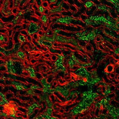 Renal tissue from laser scanning confocal microscopy, with coloration of the cytoskeleton (red fluorescence) and acetylated proteins (green fluorescence). [Egor Plotnikov]