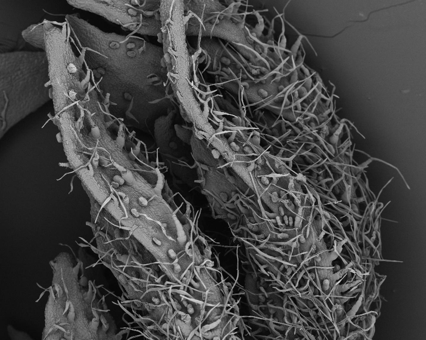 <i>Artemisia annua</i> leaf as seen under the scanning electron microscope. The glandular trichomes (with a more circular shape), which produce artemisinin, are clearly visible. [CRAG]&#8221; width=&#8221;60%&#8221; height=&#8221;60%&#8221; /><br /> <span class=