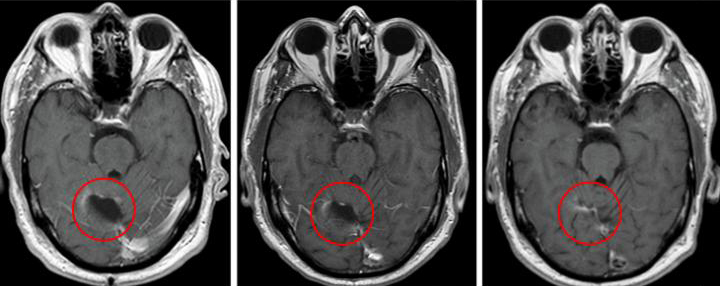 Brain scan from a trial patient showing significant shrinkage of the tumor. [Clinical Cancer Research/American Association for Cancer Research]