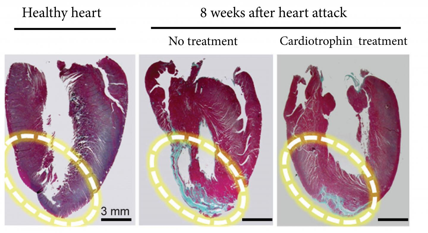 The far right image shows how a cardiotrophin treatment repaired heart muscle after a heart attack in a rat model. The blue areas are scar tissue and the red sections are healthy heart muscle. [Cell Research]