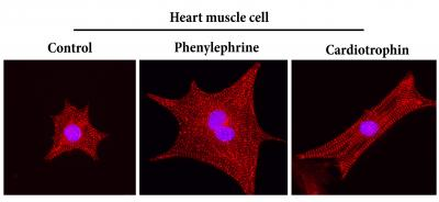 Cardiotrophin 1 stimulates a good kind of heart muscle growth, generating long healthy fibers (right panel). Heart disease causes an unhealthy kind of heart muscle growth, similar to what is seen with phenylephrine treatment (middle panel). [Cell Research]