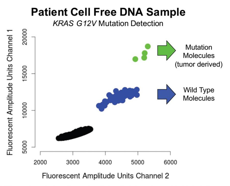 This figure illustrates how the assay can be used clinically. In this patient, the data enabled the investigators to count the number of DNA molecules containing the KRAS G12V mutation and, therefore, count the number of molecules that came from the patient's tumor. The green dots represent molecules found to contain the mutation sequence, and the blue dots represent wild-type normal DNA molecules. The information was derived from less than a nanogram of cell-free DNA. [Hanlee P. Ji/Stanford Genome Technology Center]
