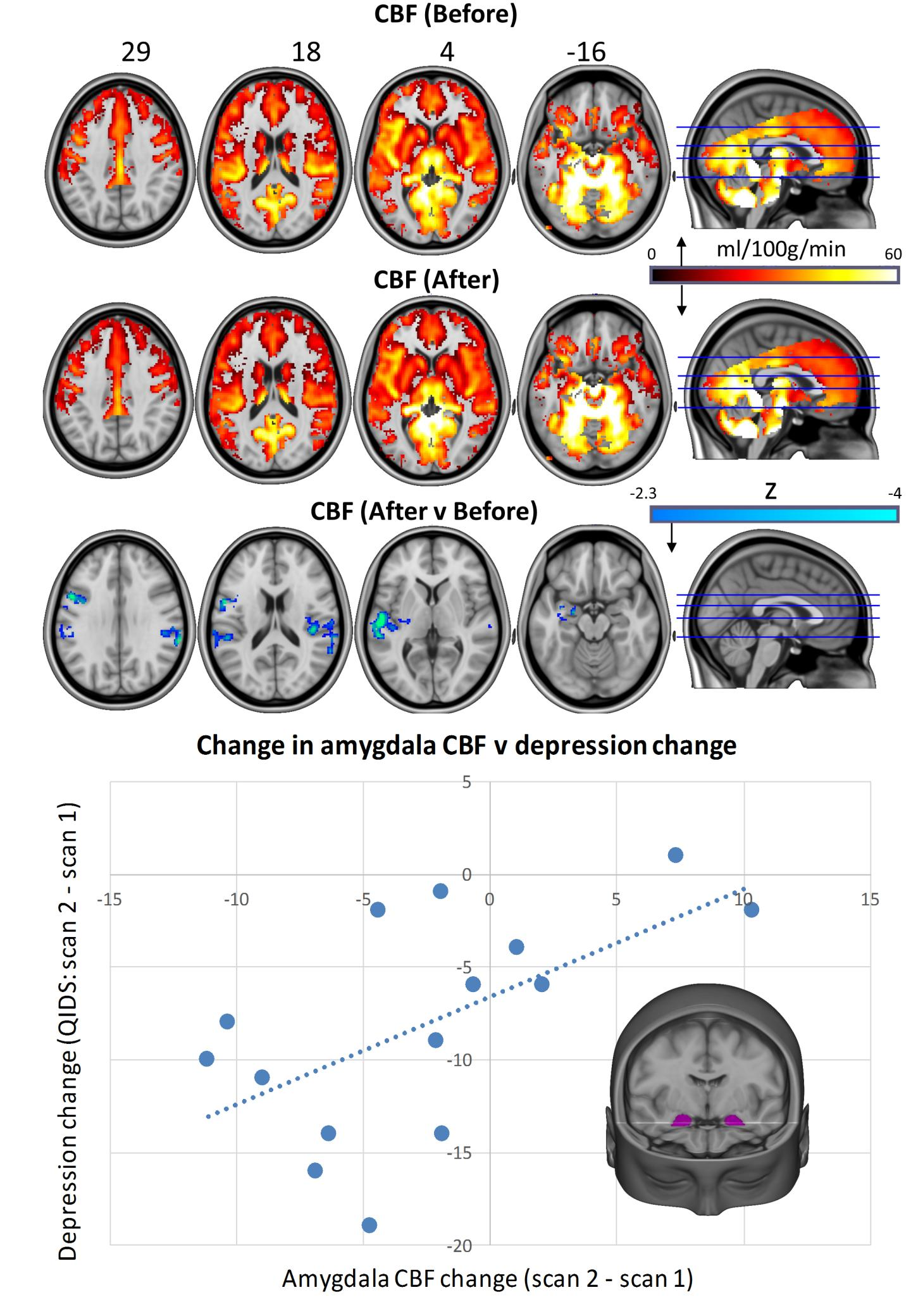 Whole-brain cerebral blood flow maps for baseline versus one-day post-treatment, plus the difference map (cluster-corrected, p < 0.05, n = 16). Correlation chart shows post-treatment changes in bilateral amygdala cerebral blood flow versus changes in depressive symptoms (r = 0.59, p = 0.01). One patient failed to complete the scan 2 QIDS-SR16 rating, reducing the sample size to n = 15 for the correlation analysis. In all of the images, the left of the brain is shown on the left. [Carhart Harris et al., Scientific Reports 2017]