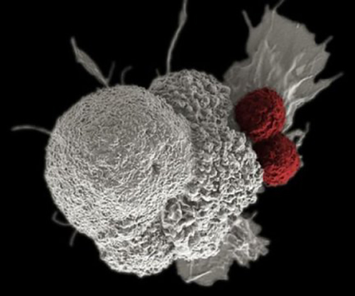 Researchers have developed a new strategy to maximize the effectiveness of anticancer immune therapy. [NCI]
