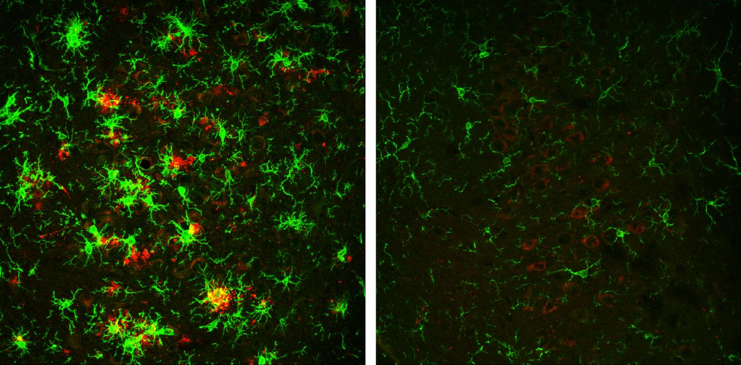 The brain of a 10-month-old mouse with Alzheimer's disease (left) is full of amyloid plaques (red) surrounded by activated microglial cells (green). But these hallmarks of Alzheimer's disease are reversed in animals that have gradually lost the BACE1 enzyme (right). [Hu et al., 2018]
