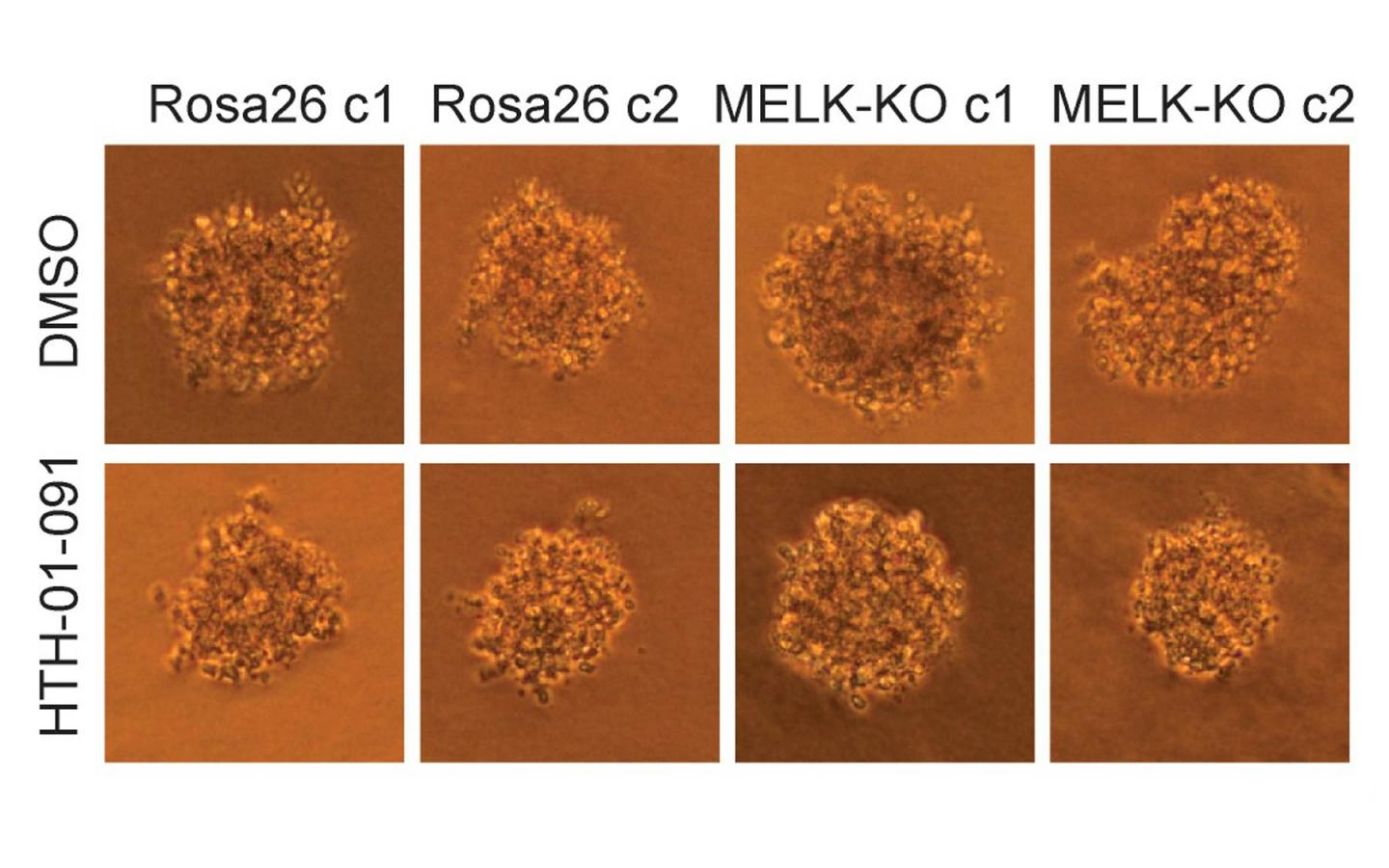 The growth of human colon cancer cells (raised in culture) is unaffected by the MELK gene. Top row: untreated cells; bottom row: cells treated with a MELK inhibitor drug. Left two columns, control cells; right two columns, cells in which MELK gene has been knocked out. CSHL researchers conclude that MELK is not involved in cancer proliferation. [Sheltzer Lab, CSHL]