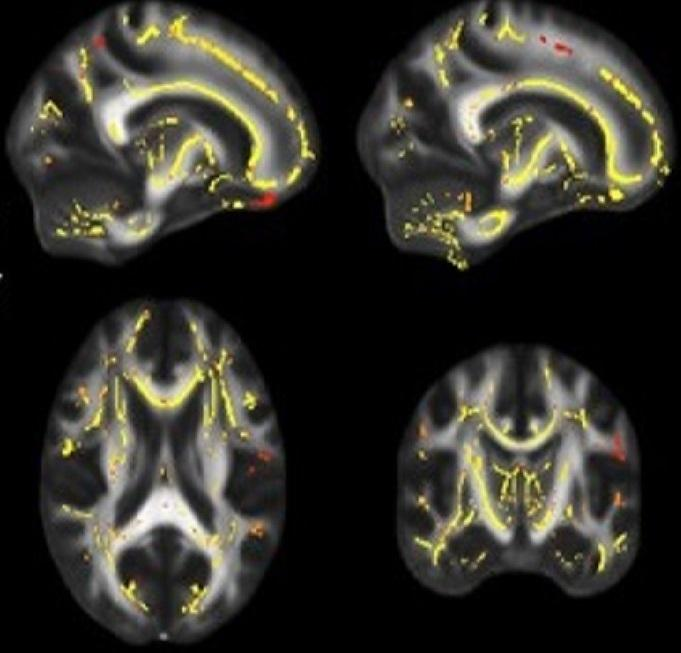 Brain imaging shows yellow and reddish pixels representing areas where the functionality of white matter is associated with higher fitness levels. [UT Southwestern Medical Center]
