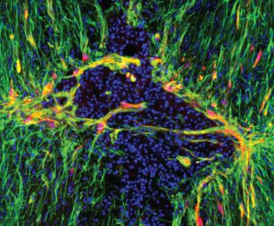 Genetically modified astrocytes (red) line the lesion border in the injured spinal cord. A new mouse study shows that triggering a gene inside astrocytes activates the star-shaped cells and may improve the brain's ability to heal from a range of debilitating conditions, from stroke to concussions and spine injuries. [UT Southwestern]