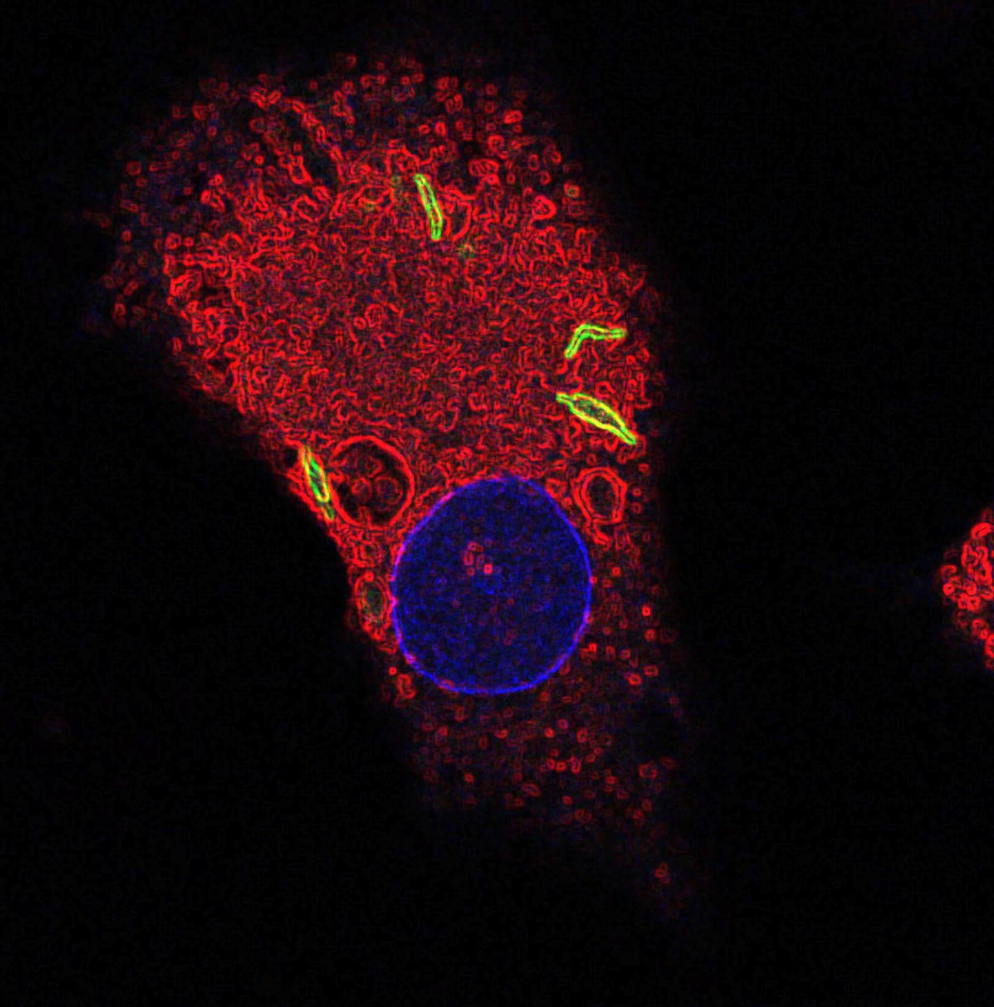 Image of a macrophage labeled for the nucleus (blue), fused lysosomes and phagosomes (red), and TB bacteria (green). [Susanne Herbst/Francis Crick Institute]