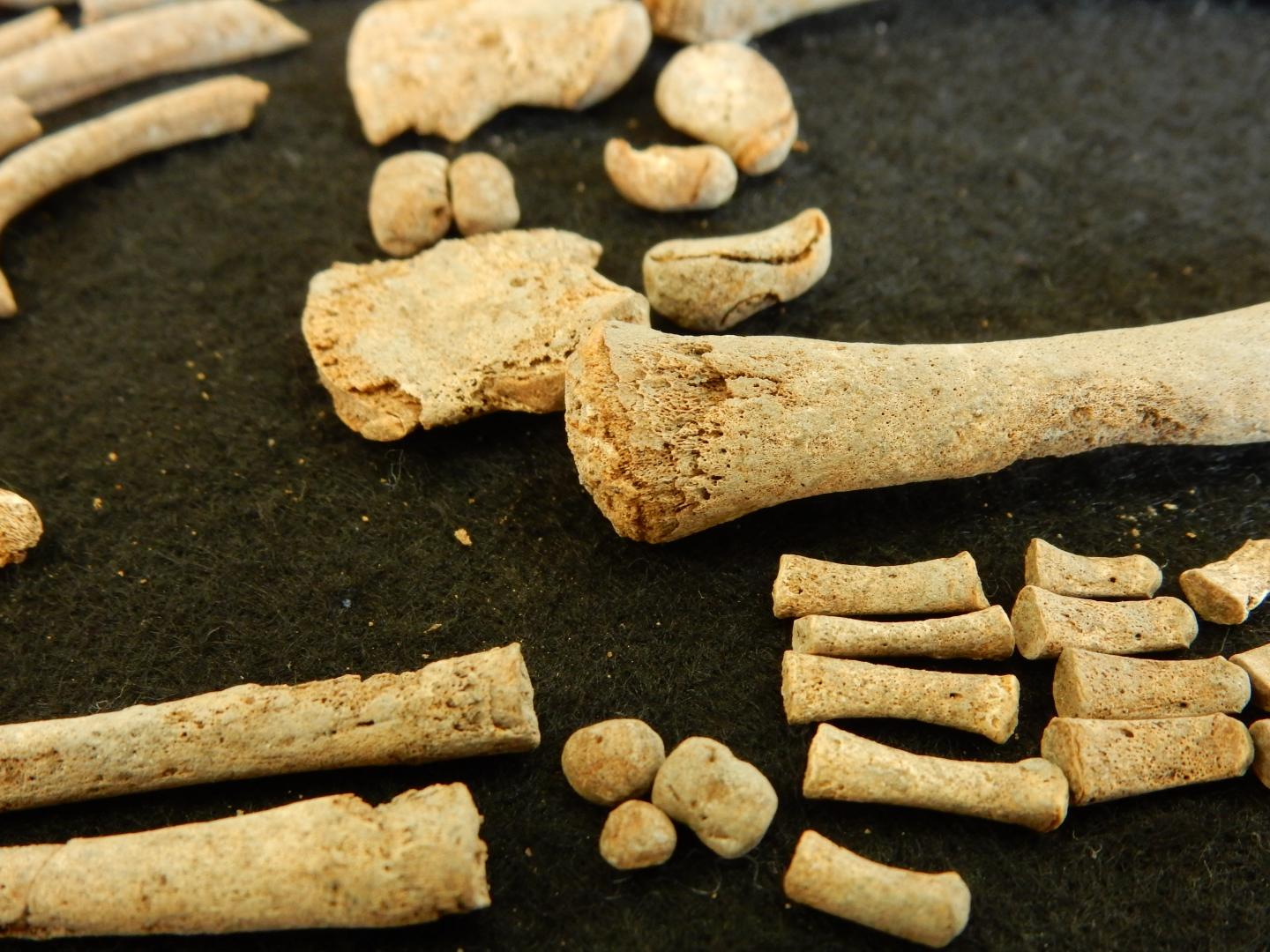 These are skeletal remains from individual 94A, who was infected with syphilis and was 6 months old at the time of death. The skeleton displays characteristic signs of a treponemal disease. [Rodrigo Barquera. Santa Isabel collection, Lab. of Osteology, ENAH, Mexico (permission No. 401.15.3-2017/1065 INAH).]