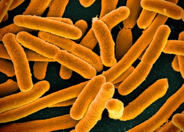 Drug resistant <i>E. coli</i> could be rapidly detected using newly developed technique. [NIH]