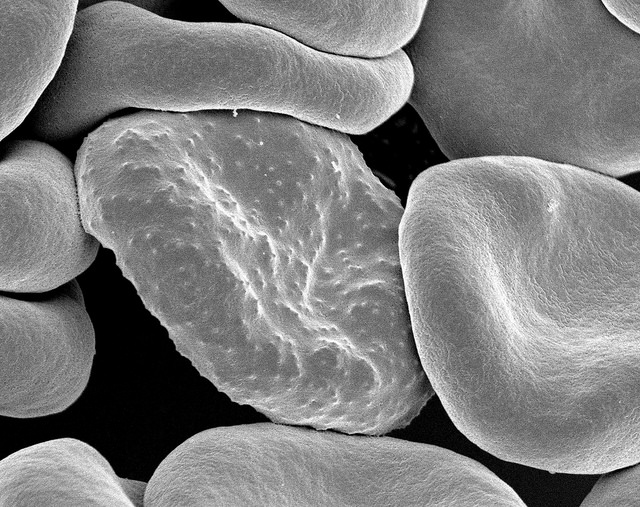 A malaria-infected red blood cell [NIH]