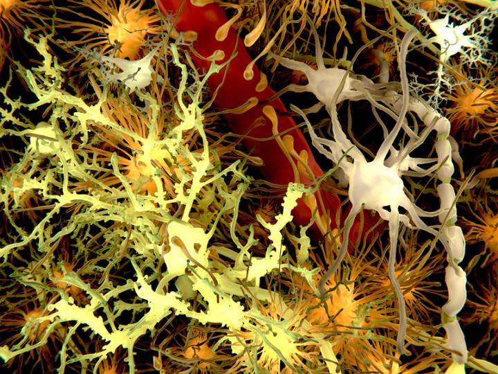 A new study suggests that amyloid beta may potentially be transmissible via certain medical procedures. [Juan Gartner]