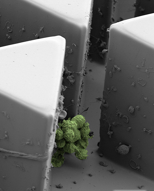 Scanning electron micrograph of a circulating tumor cell cluster captured by Cluster-Chip. [Sarioglu et al., Nature Methods]