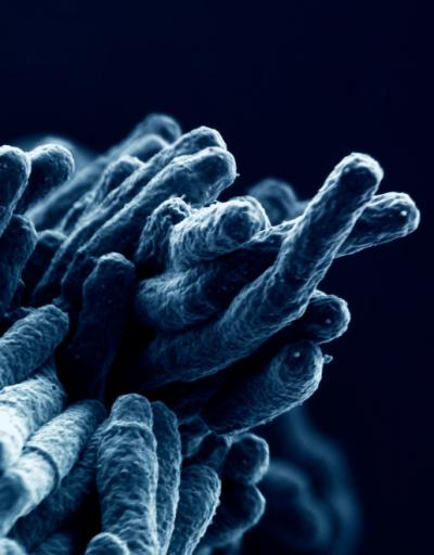 Colorized electron microscopy image of Mycobacterium tuberculosis.[Andrea Ablasser/EPFL]
