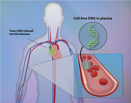 A simple blood test can rapidly and accurately detect mutations in two key genes in non-small-cell lung tumors according to a new study led by researchers at Dana-Farber Cancer Institute [Jonathan Bailey, NHGRI]
