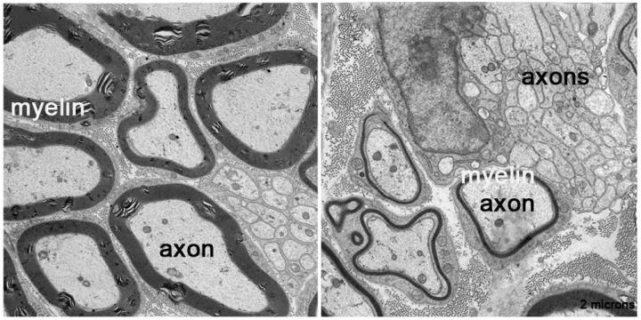 In normal nerves (left), which have proteins called prohibitin axons have thick myelin coatings (black outlines). In contrast, nerves engineered to lack prohibitin in glial cells have axons with very thin myelin or none at all (right). [M. Laura Feltri et al]