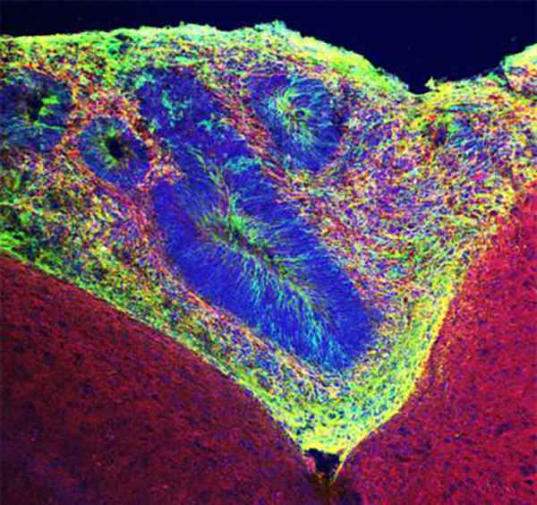 Human organoid tissue (green) grafted into mouse tissue. Neurons are labeled red. [Salk Institute]