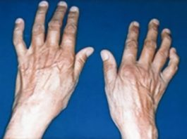Individuals with a particular version of a gene have an increased risk for rheumatoid arthritis and the severity of bone damage. [National Library of Medicine]