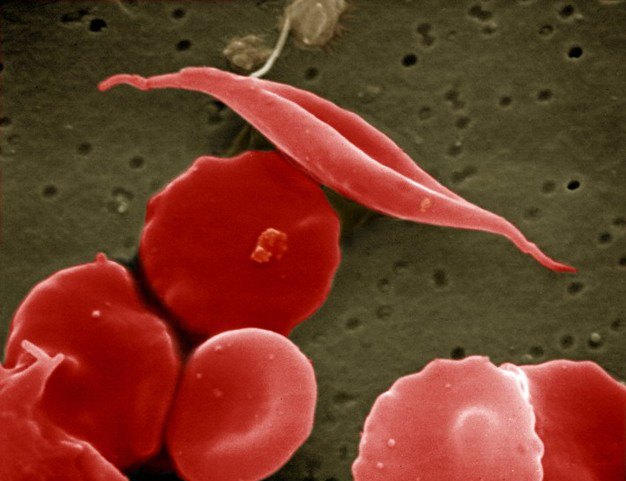 Scientists say CRISPR could be used to exploit naturally occurring mutations as treatments for blood diseases such as beta-thalassemia and sickle cell disease. [<a target=