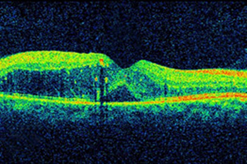 The retina of a person with diabetic retinopathy. [National Eye Institute/NIH]