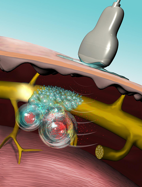 Illustration showing ultrasound triggering liposomes to release local anesthesia. [Mary O'Reilly]