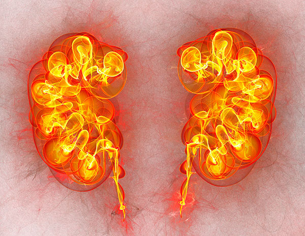 Kidney Cancer Biomarker Predicts Disease Risk And Survival