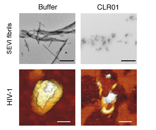 Electron microscopy reveals that buffer has no effect on amyloid fibrils in semen (top left); whereas CLR01 disrupts fibrils (top right). Scale: 500 nm. Atomic force microscopy reveals that buffer has no effect on the HIV virion (bottom left); CLR01 destroys it (bottom right). Scale: 100 nm. [James Shorter, Ph.D., University of Pennsylvania]
