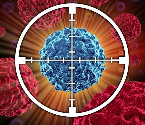 Researchers at the University of Groningen say new approach to blocking glutamine transport would be a way to kill cancer cells. [©freshidea/Fotolia]