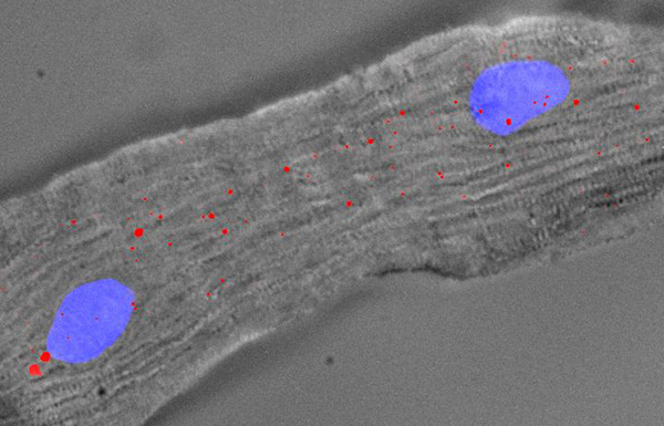 Single-cell transcriptomics has been used to examine cardiomyocyte subpopulations