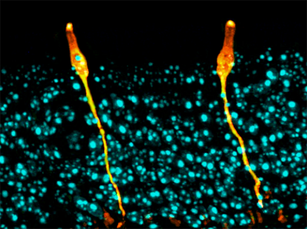 Pulmonary ionocytes (orange) extend through neighboring epithelial cells in the upper respiratory tract of the mouse