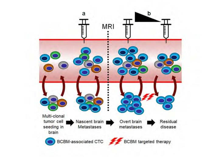 Model illustrates clinical implications of BCBM CTC screening method for brain micrometastases before they become detectable by MRI. BCBM-associated CTCs can be used as a tool to evaluate responses to therapy for BCBM patients. [Houston Methodist]