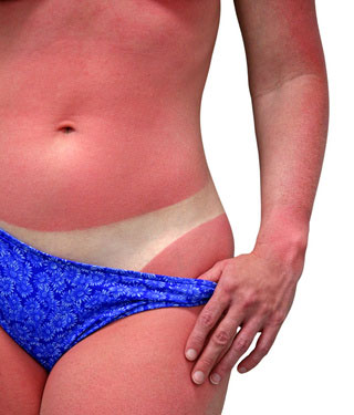 Results from a small clinical study, where participants were given high doses of oral vitamin D one hour after sunburn, showed the compound to reduce skin redness, swelling, and inflammation significantly [Amy Walters/Fotolia]