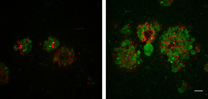 In the brains of mice with Alzheimer's disease, decreased levels of JIP3 (right) induce the formation of larger amyloid plaques (red) and increased numbers of swollen axons filled with lysosomes (green). [Gowrishankar et al., 2017/Journal of Cell Biology]