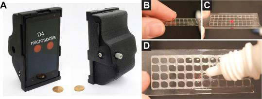 (A) The 3D printed smartphone attachment that uses the phone's camera to review the results of the assay. (B–D) The process to administer a blood sample onto the D4 assay. [Daniel Joh/Duke University]