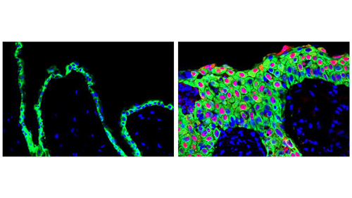 Overexpression of the SRSF6 gene in mice leads tissue to display the molecular signatures of wound-healing (right). These signatures are evident when one compares tissue in which the gene's expression is normal (left). [Krainer Laboratory