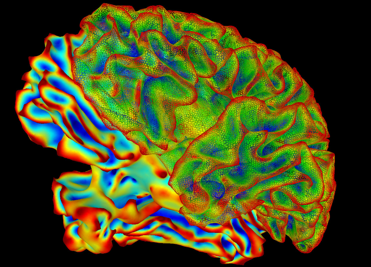 New findings help explain why patients have a greater risk of catching life-threatening infections after stroke. [NIH]