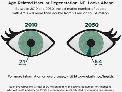 Between 2010 and 2050, the number of people in the United States with age-related macular degeneration is expected to more than double. [National Eye Institute]