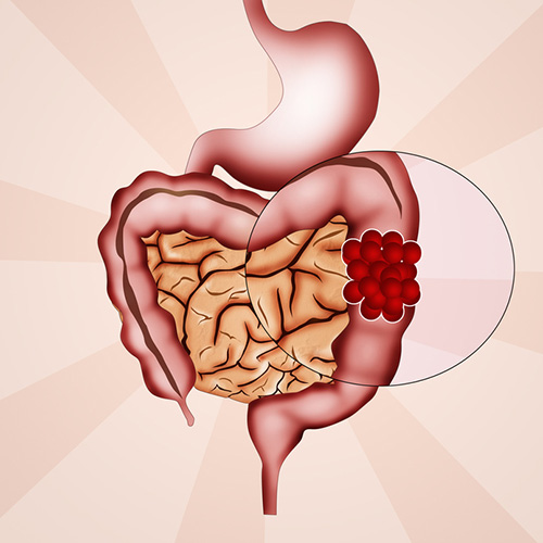 Colorectal cancer currently affects around 1.2 million people in the U.S. and 150,000 new cases are diagnosed every year, making it the third most common cancer in both men and women. Source: © adrenalinapura / Fotolia