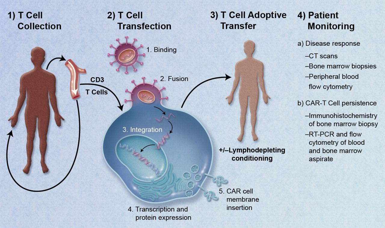 Diagram of how CAR T cells are generated. [Lymphomation.org]
