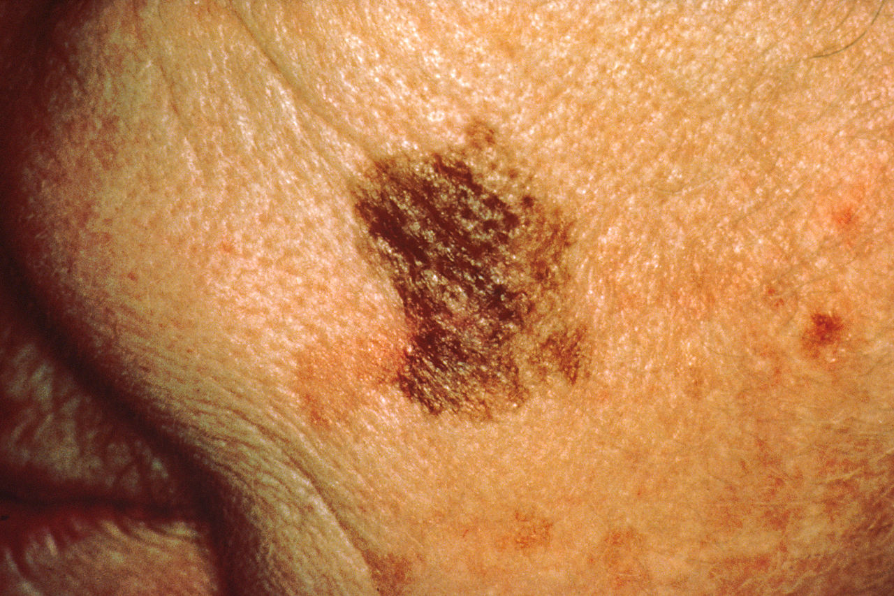 Everything about melanoma, including its causes, appearance, and the treatment
