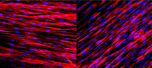 Staining on these slides shows that engineered human arteries produce contractile proteins (left) and calponin (right) just one week after being grown in culture. These two molecules allow the arteries to contract and dilate in response to environmental stimuli. [George Truskey Lab, Duke University]
